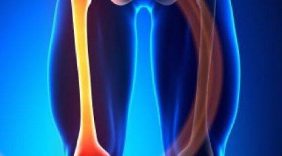 Γιγαντοκυτταρικός Όγκος