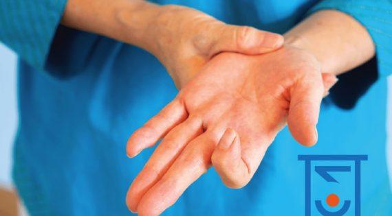 Εκτινασσόμενος Δάκτυλος (Tringer Finger)